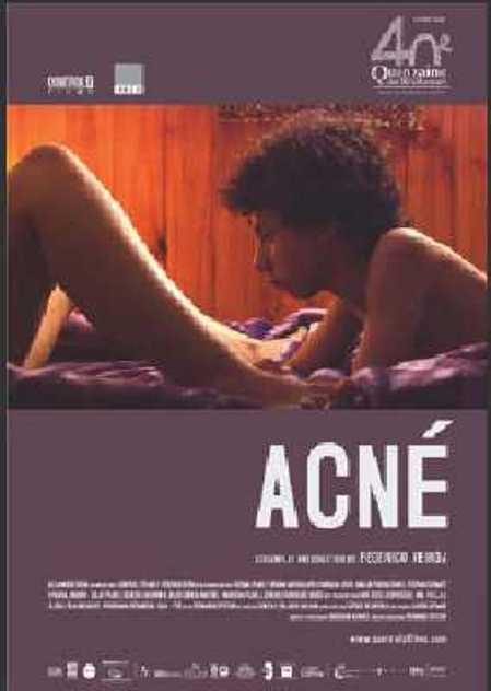 """Trailer de la película """"Acné 2009"""", con Alejandro Tocar y Yoel Bercovici"""
